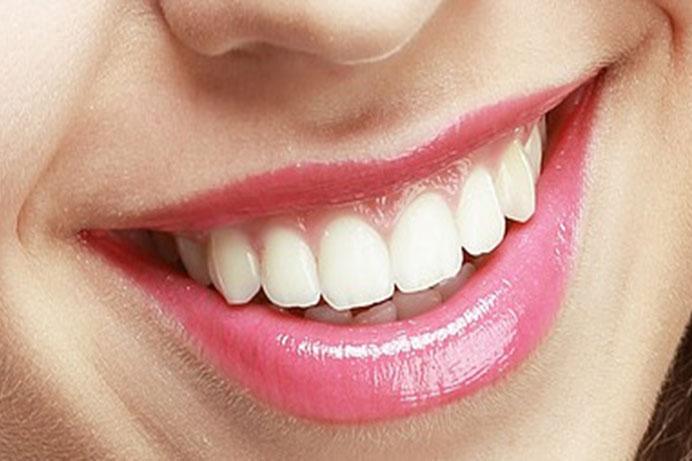 Implanty stomatologiczne są aktualnie najlepszym rozwiązaniem dla osób z brakami w uzębieniu. W naszej praktyce stosujemy najwyższej jakości implanty firmy MIS, które objęte są dożywotnią gwarancją producenta,co oznacza, że zostanie wymieniony na koszt producenta.